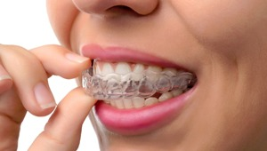 Woman wearing a clear aligner.