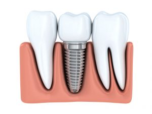 Learn more about why dental implants in Odessa are so effective.