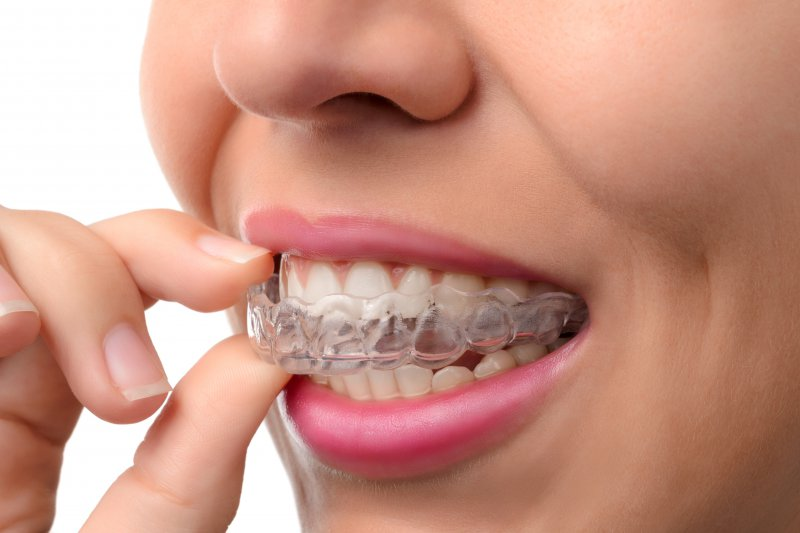 Woman wearing a clear plastic aligner.